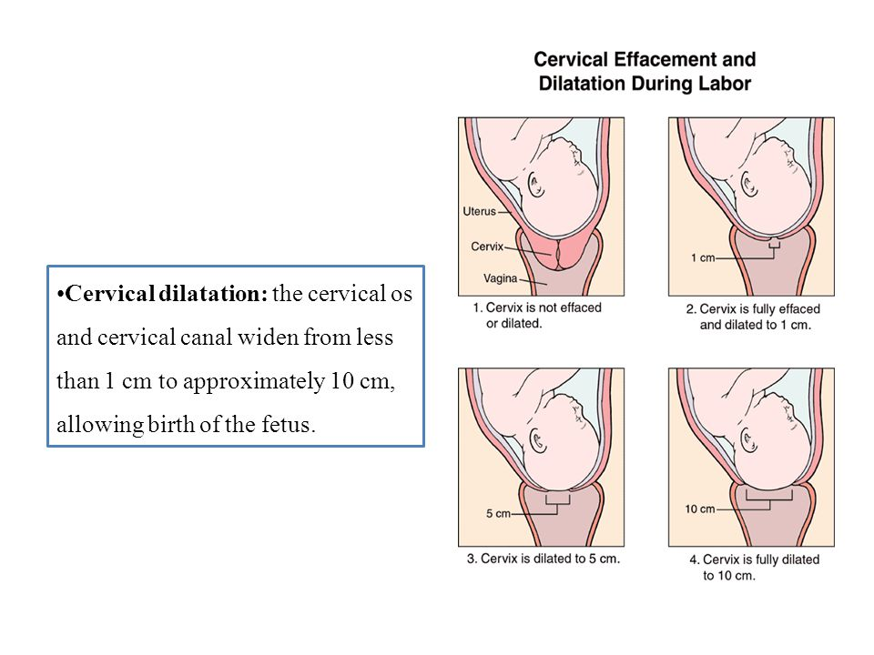 Cervical dilatation: the cervical os and cervical canal widen from less than 1 cm to approximately 10 cm, allowing birth of the fetus.