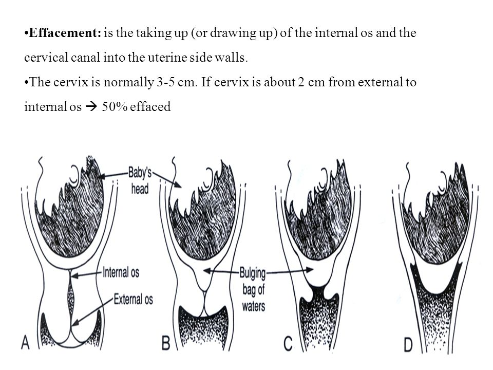 Effacement: is the taking up (or drawing up) of the internal os and the cervical canal into the uterine side walls.
