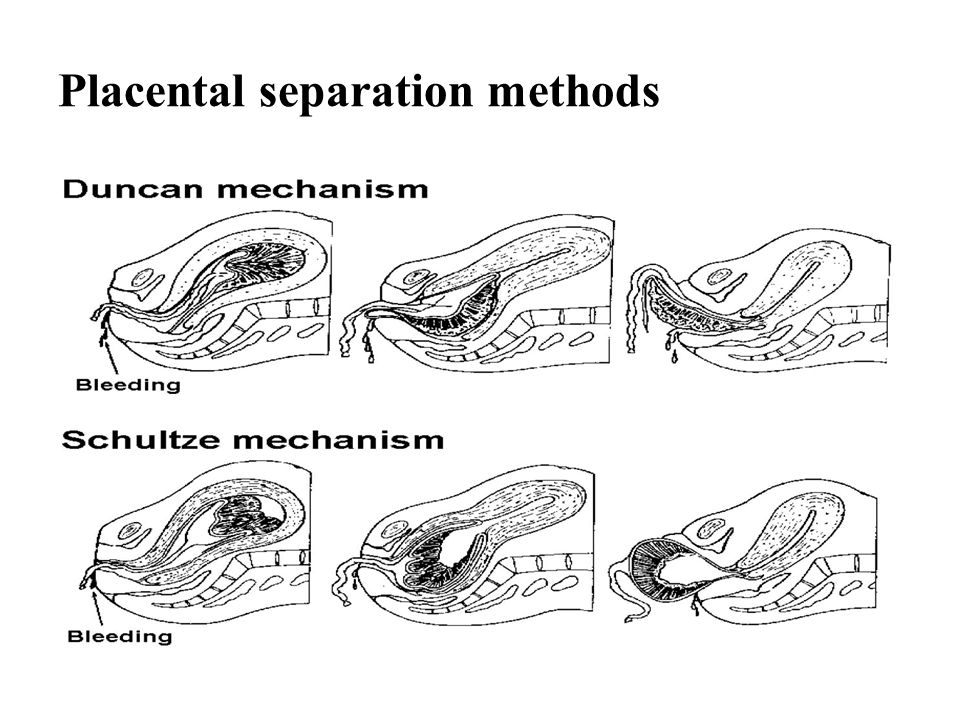 Placental separation methods