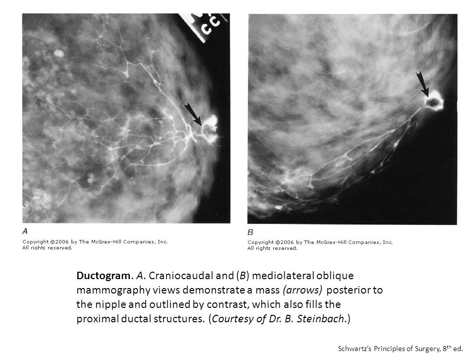 Ductogram. A. Craniocaudal and (B) mediolateral oblique mammography views demonstrate a mass (arrows) posterior to the nipple and outlined by contrast, which also fills the proximal ductal structures. (Courtesy of Dr. B. Steinbach.)