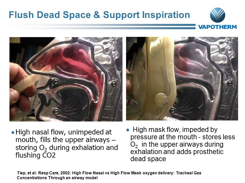 Flush Dead Space & Support Inspiration