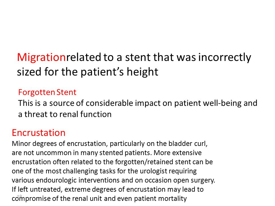 Migrationrelated to a stent that was incorrectly sized for the patient's height