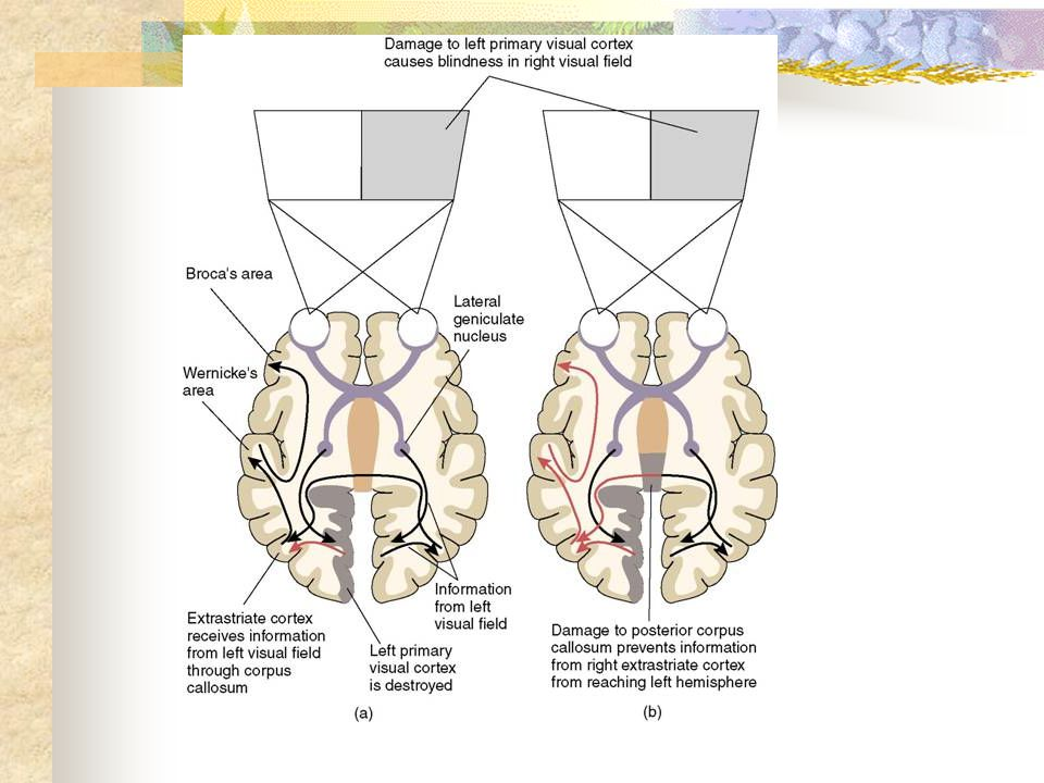 Figure on left shows damage in L primary visual cortex (red arrow shows destroyed pathways)