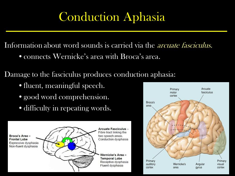 Conduction Aphasia Information about word sounds is carried via the arcuate fasciculus. connects Wernicke's area with Broca's area.