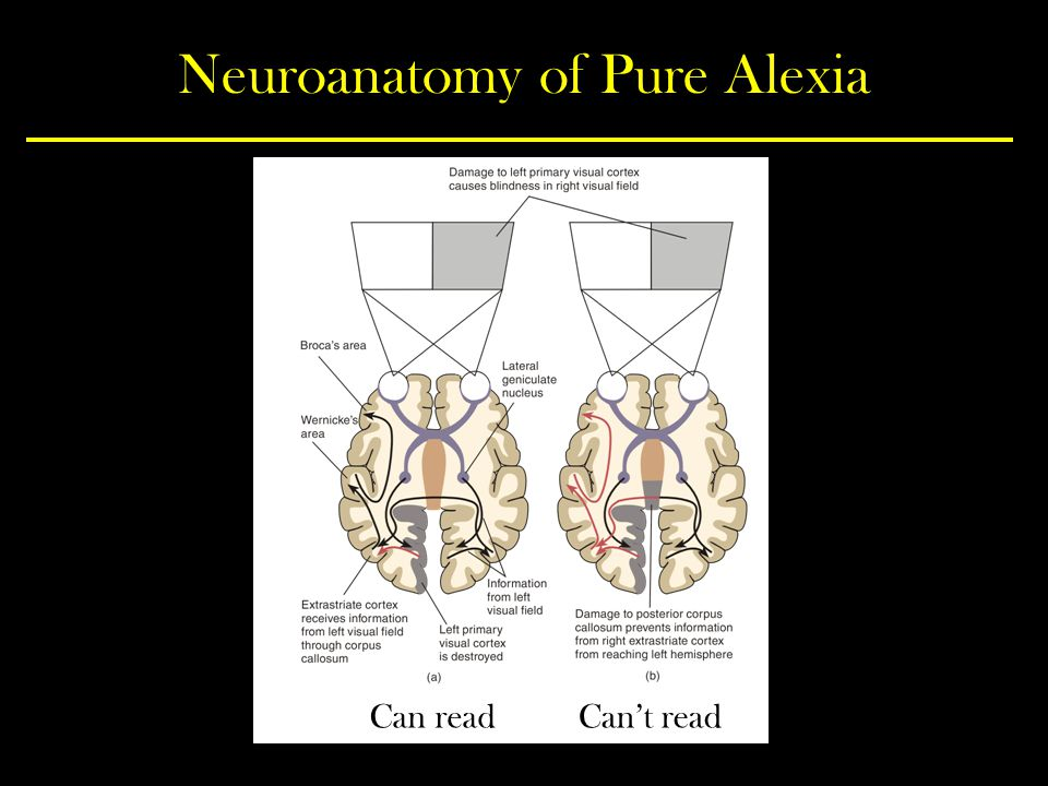 Neuroanatomy of Pure Alexia
