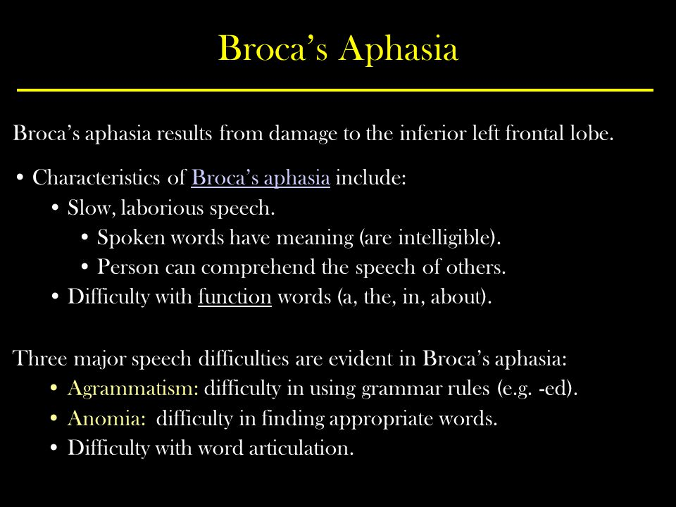Broca's Aphasia Broca's aphasia results from damage to the inferior left frontal lobe. Characteristics of Broca's aphasia include: