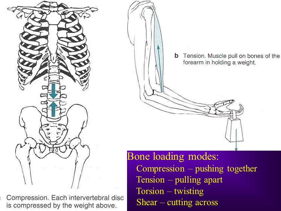Bone loading modes: Compression – pushing together