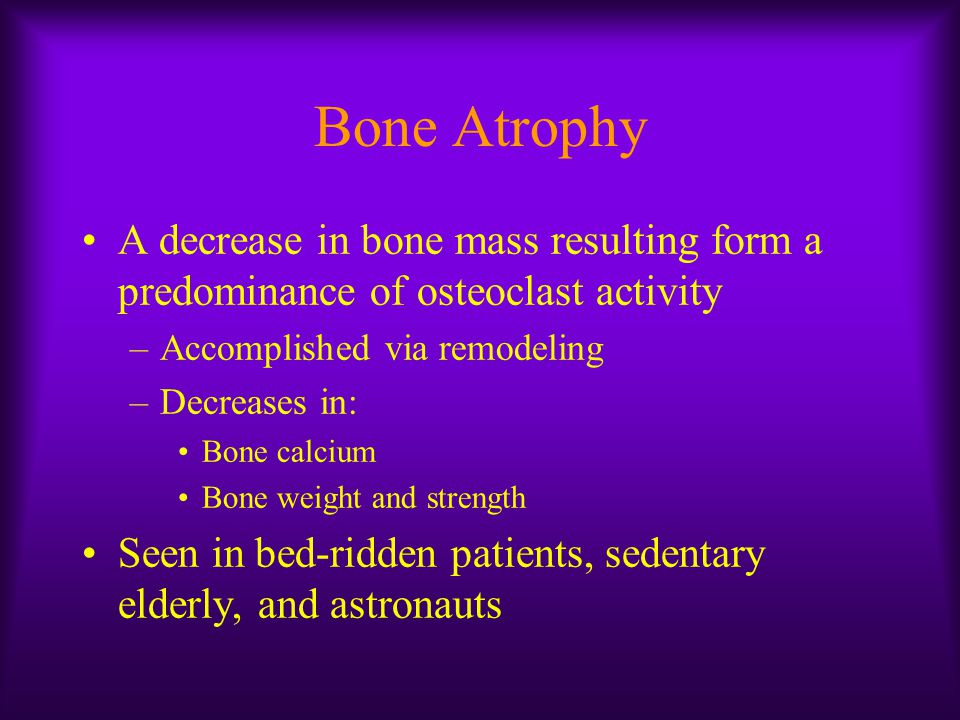 Bone Atrophy A decrease in bone mass resulting form a predominance of osteoclast activity. Accomplished via remodeling.