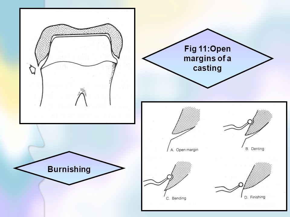 Fig 11:Open margins of a casting