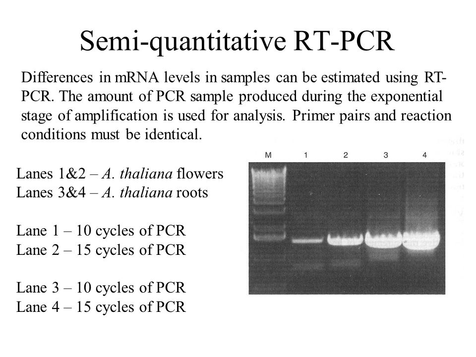 Semi-quantitative RT-PCR