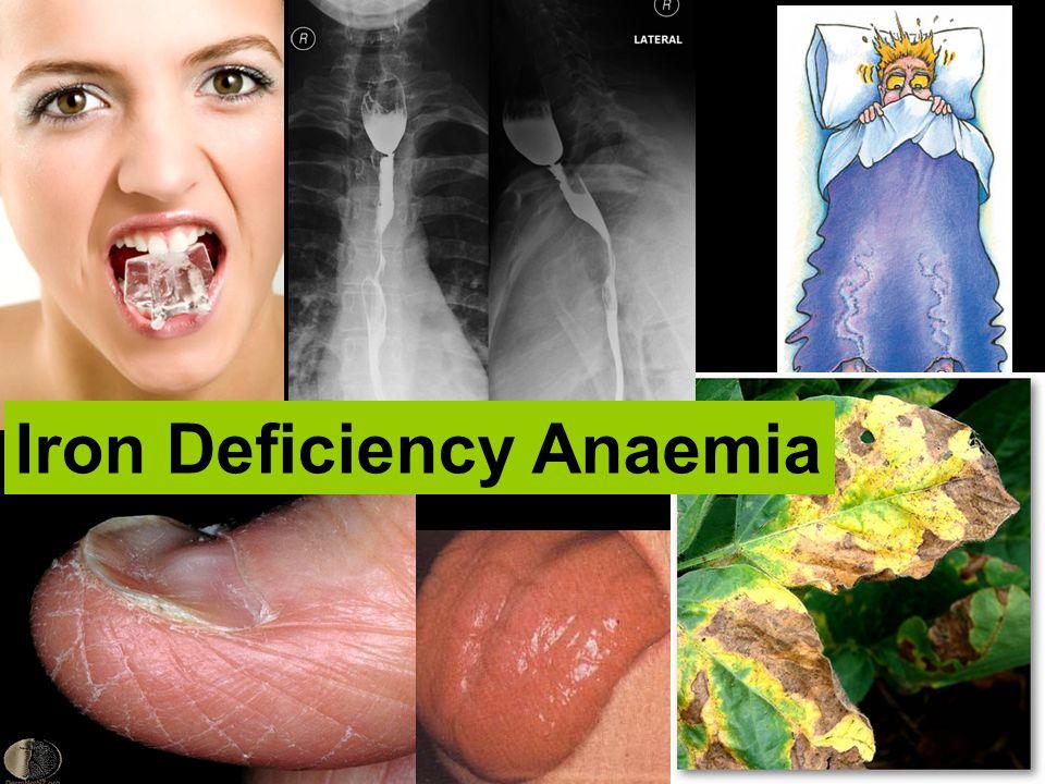 Iron Deficiency Anaemia