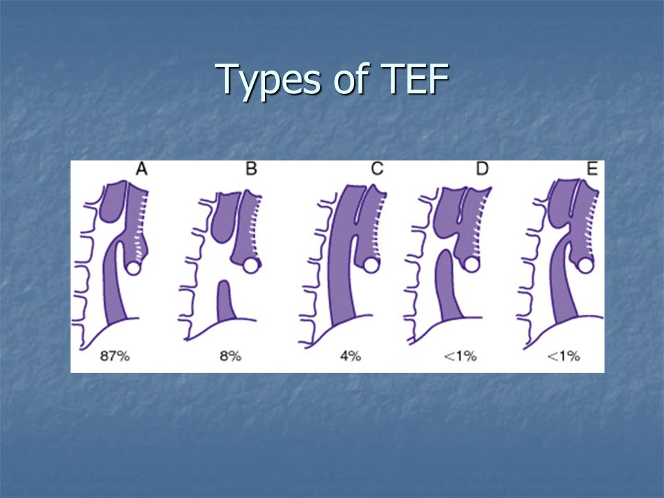 Types of TEF