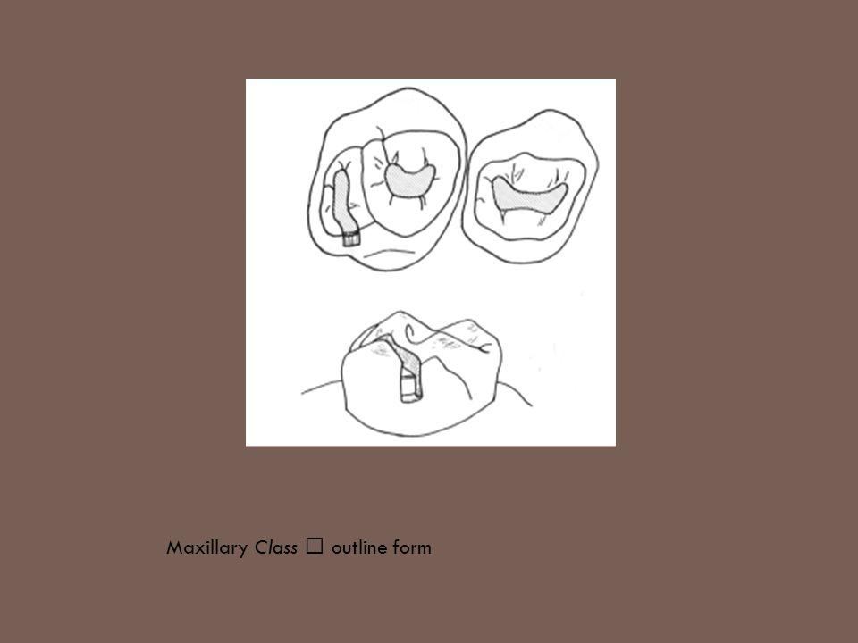 Maxillary Class Ⅰ outline form