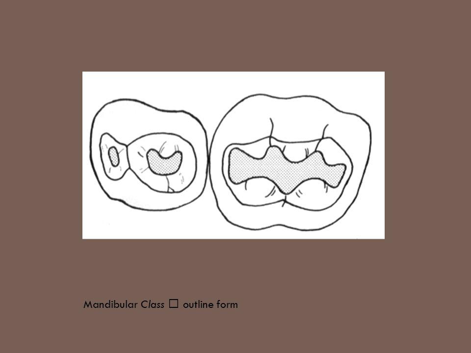 Mandibular Class Ⅰ outline form