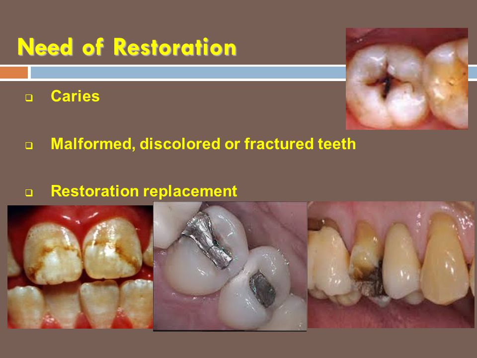 Need of Restoration Caries Malformed, discolored or fractured teeth