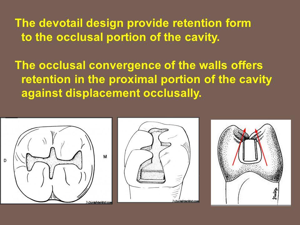 The devotail design provide retention form