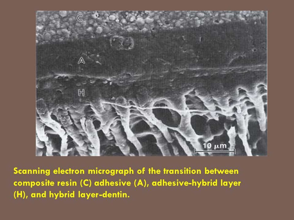 Scanning electron micrograph of the transition between