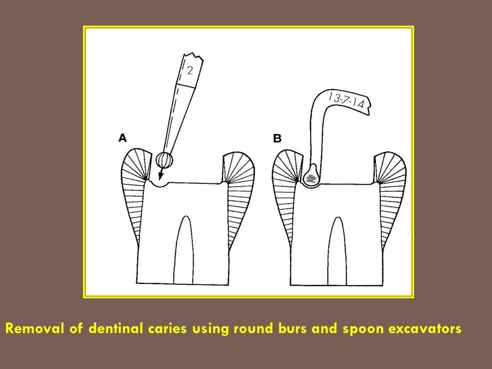 Removal of dentinal caries using round burs and spoon excavators