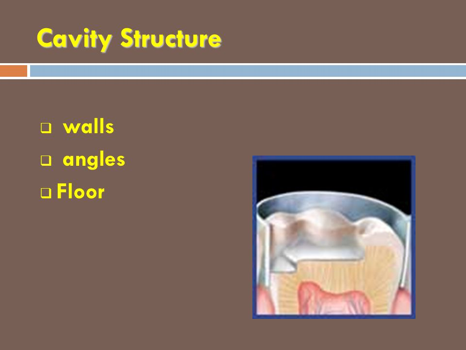 Cavity Structure walls angles Floor