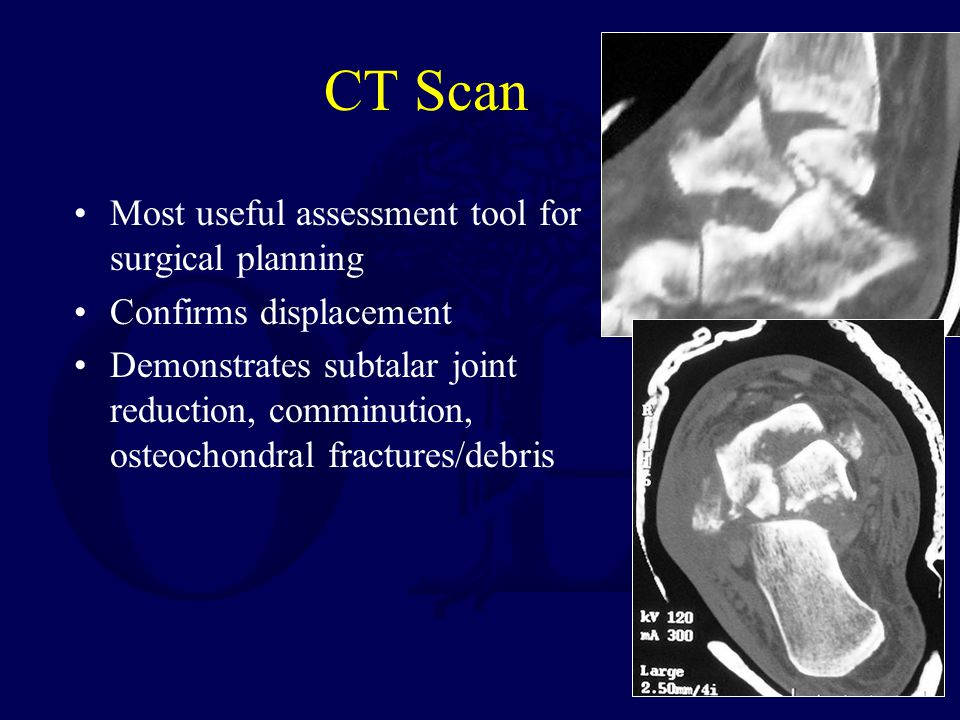 CT Scan Most useful assessment tool for surgical planning