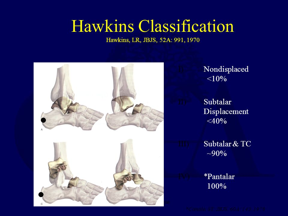 Hawkins Classification Hawkins, LR, JBJS, 52A: 991, 1970