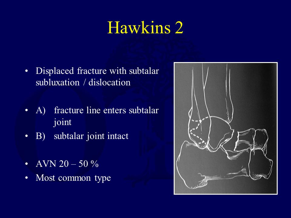 Hawkins 2 Displaced fracture with subtalar subluxation / dislocation