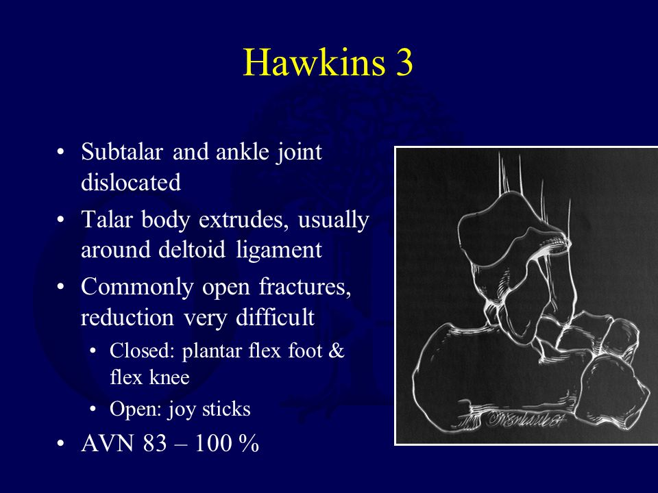 Hawkins 3 Subtalar and ankle joint dislocated