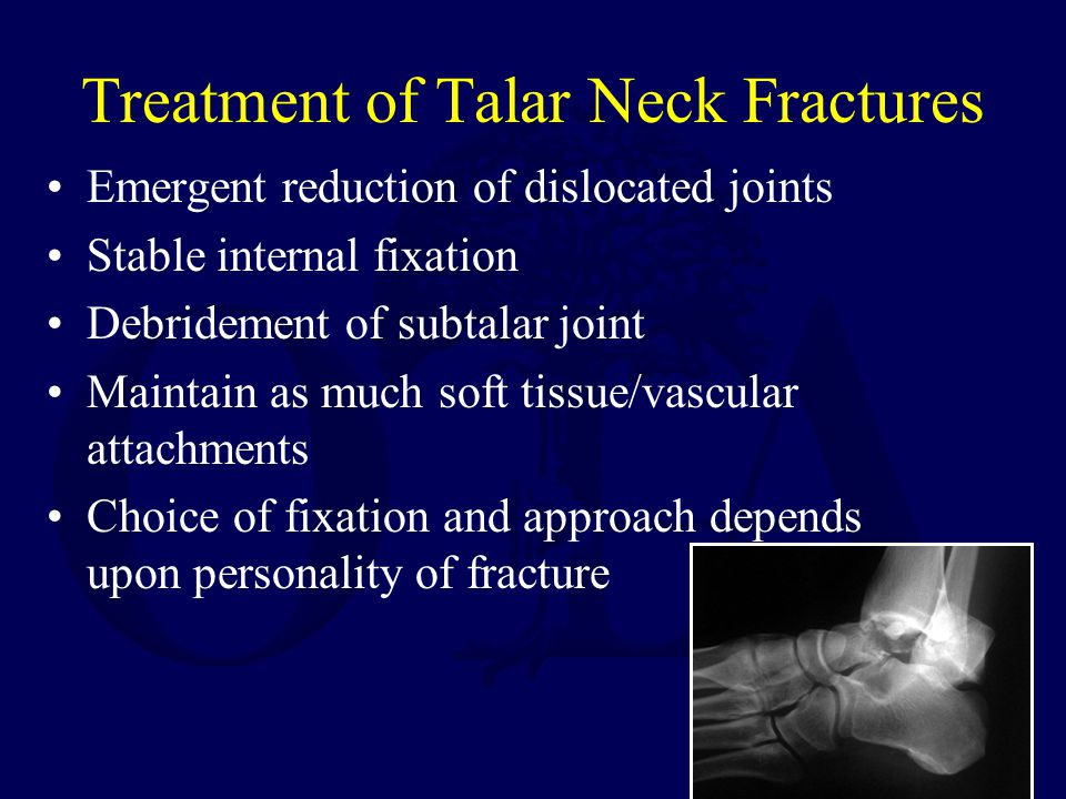 Treatment of Talar Neck Fractures