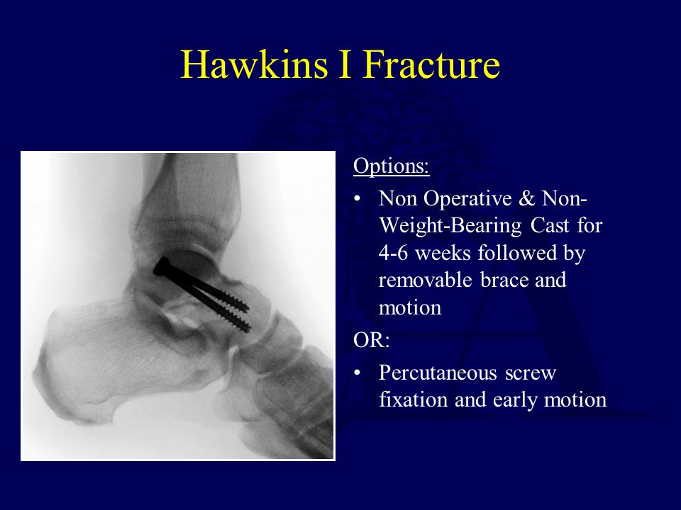 Hawkins I Fracture Options: