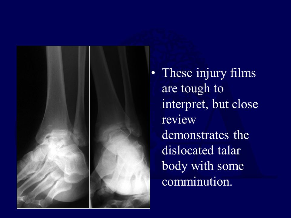 These injury films are tough to interpret, but close review demonstrates the dislocated talar body with some comminution.
