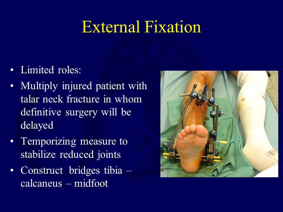 External Fixation Limited roles: