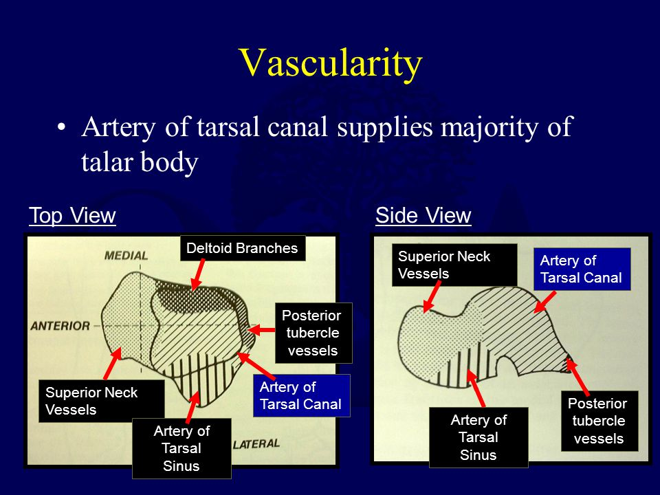 Vascularity Artery of tarsal canal supplies majority of talar body