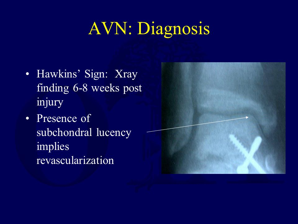 AVN: Diagnosis Hawkins' Sign: Xray finding 6-8 weeks post injury