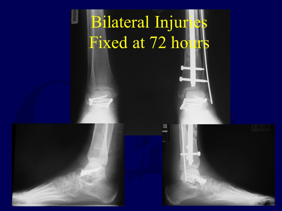 Bilateral Injuries Fixed at 72 hours