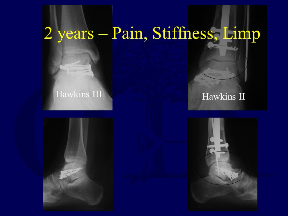 2 years – Pain, Stiffness, Limp