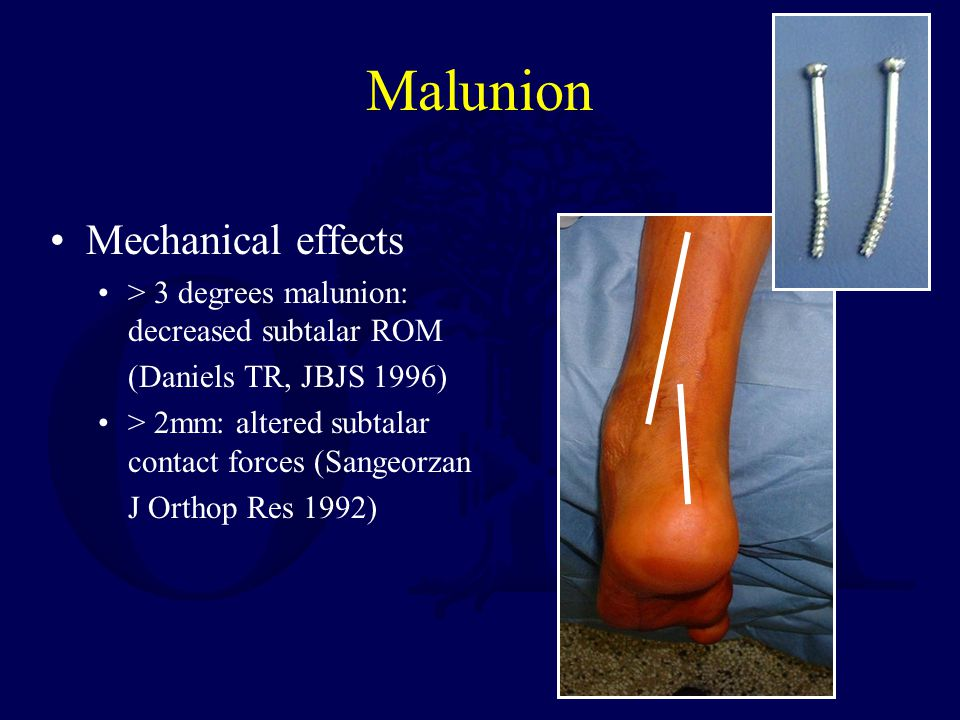 Malunion Mechanical effects