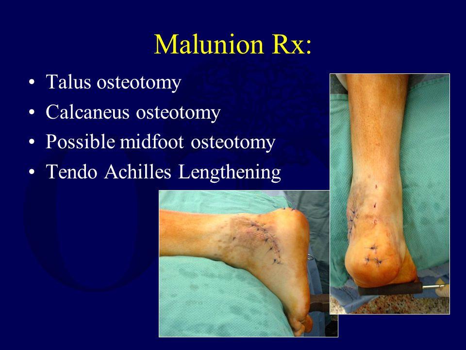 Malunion Rx: Talus osteotomy Calcaneus osteotomy