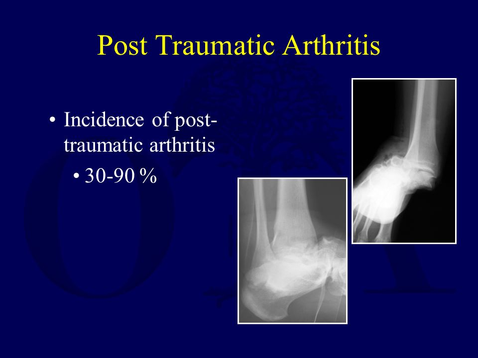 Post Traumatic Arthritis