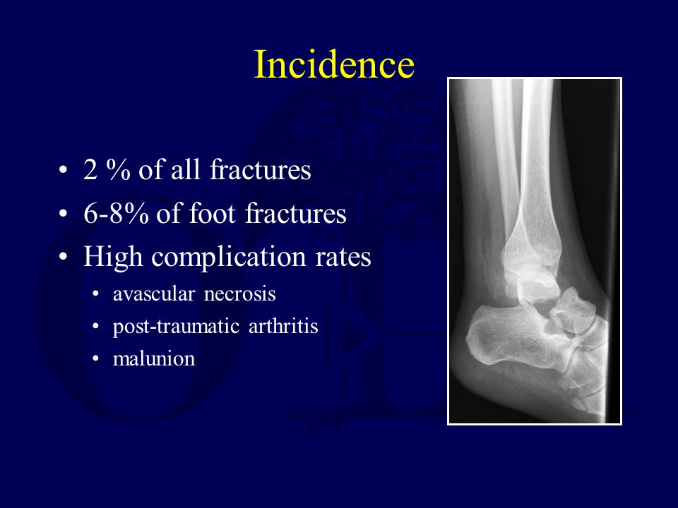 Incidence 2 % of all fractures 6-8% of foot fractures