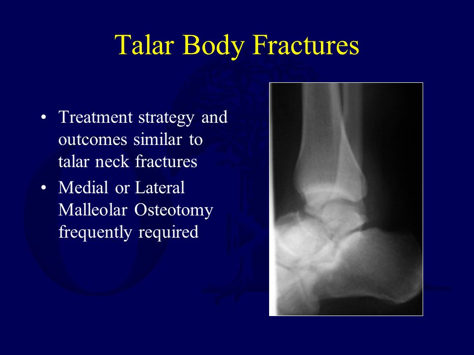 Talar Body Fractures Treatment strategy and outcomes similar to talar neck fractures.