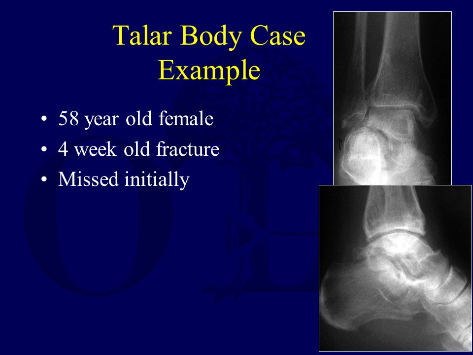 Talar Body Case Example