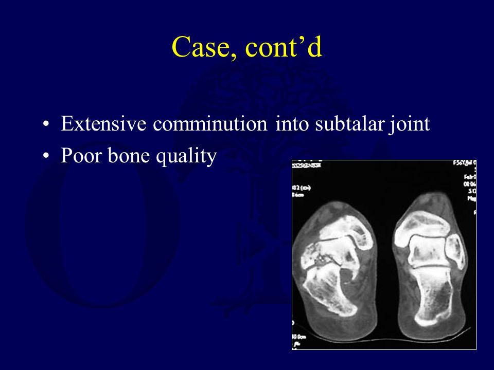 Case, cont'd Extensive comminution into subtalar joint