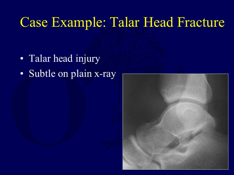 Case Example: Talar Head Fracture