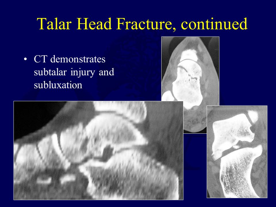 Talar Head Fracture, continued