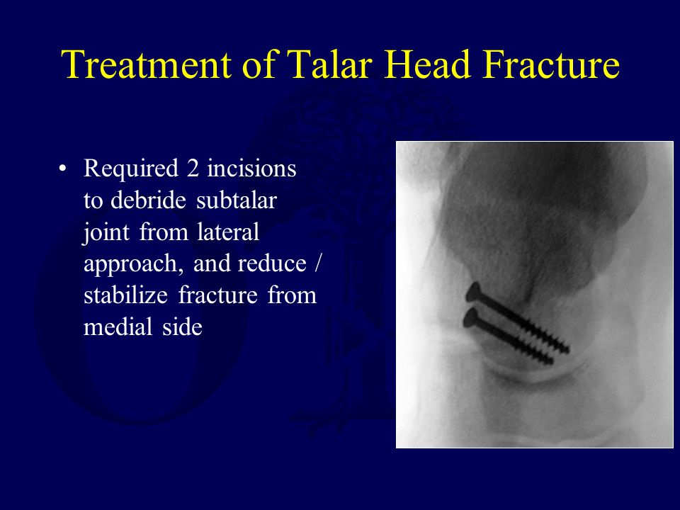 Treatment of Talar Head Fracture