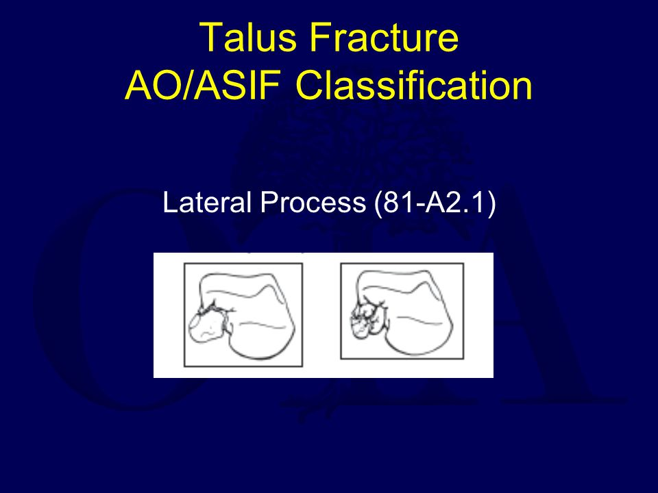 Talus Fracture AO/ASIF Classification