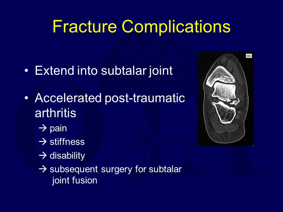 Fracture Complications