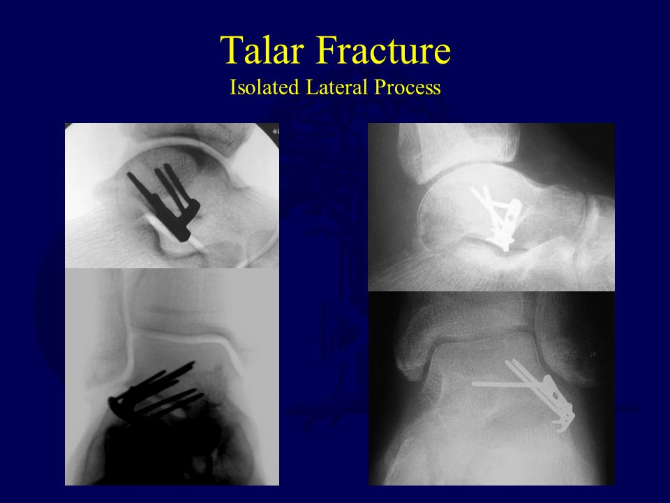 Talar Fracture Isolated Lateral Process