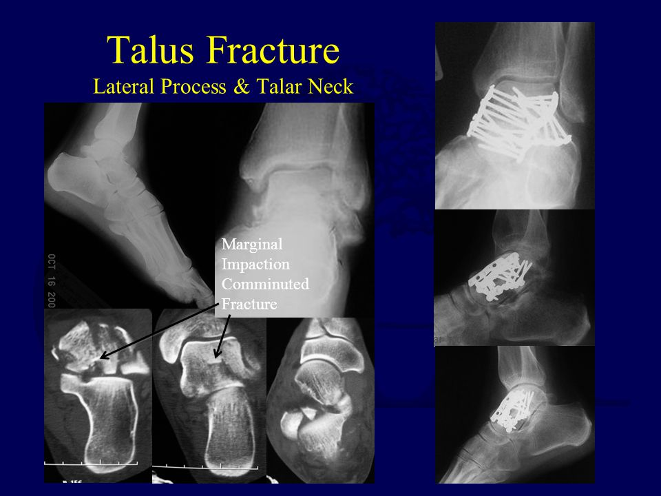 Fractures of the Talus and Subtalar Dislocations - ppt video online ...