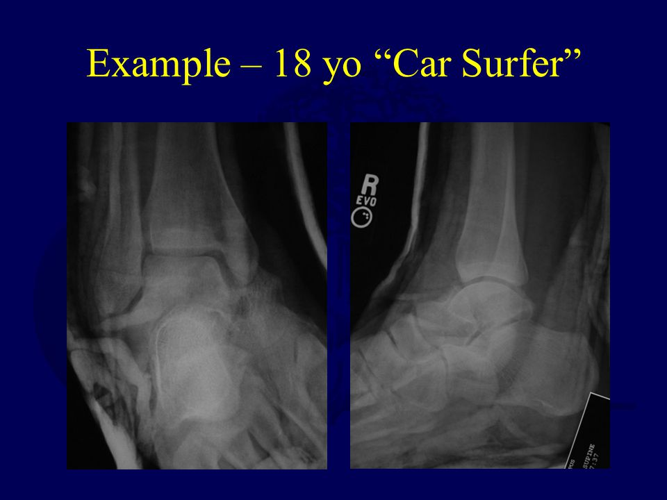 Example – 18 yo Car Surfer